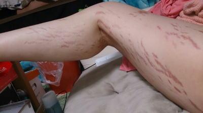 足の妊娠線画像例↓