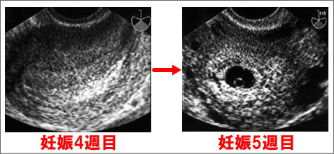 妊娠5週目になって胎嚢が確認できる