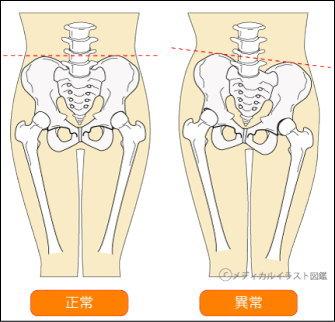 骨盤全体が左に傾いた状態