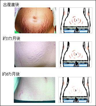 妊娠線(にんしんせん)のケアは継続して