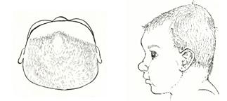 よくある赤ちゃんの頭の形の変形パターン